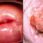 Nguyên nhân gây viêm lộ tuyến ở nữ giới