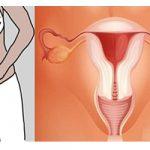 Triệu chứng thường gặp của bệnh viêm buồng trứng
