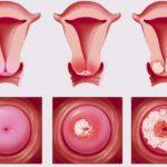 Nguyên nhân gây viêm cổ tử cung nữ giới cần phải biết