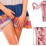 Triệu chứng bệnh ngứa âm đạo ở nữ giới
